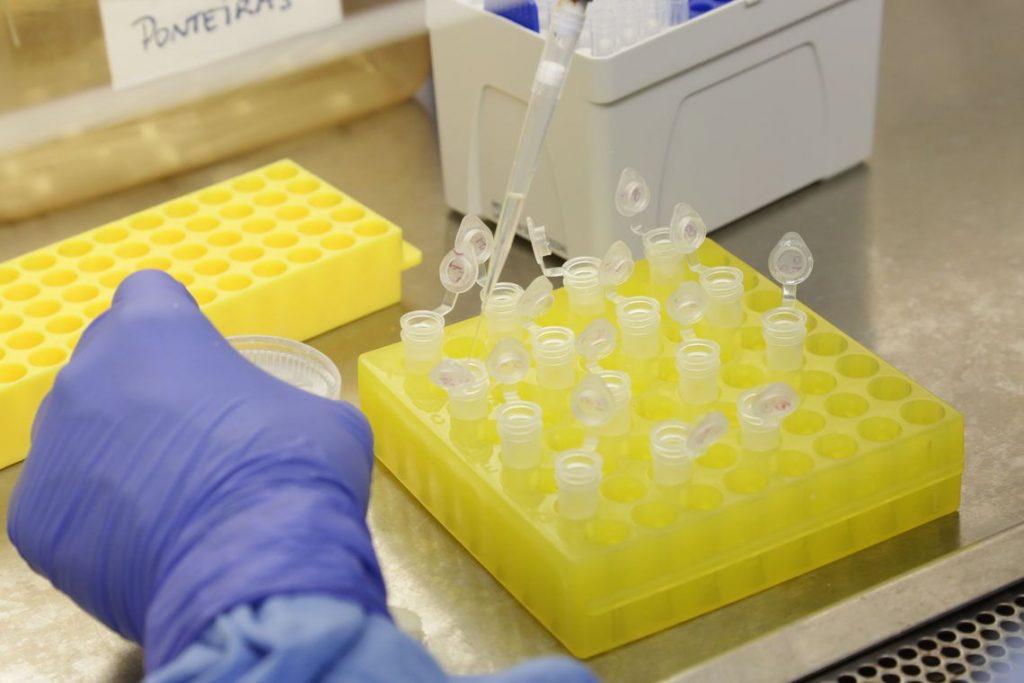Sobe para 17 os casos investigados de coronavírus no Espírito Santo. Foto: Divulgação/Josué Damacena