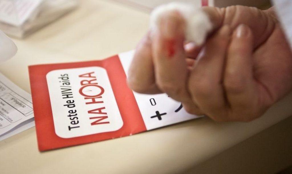 Teste HIV/Aids. Foto: Agência Brasil